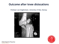Outcome after knee dislocations: Short and long-term results