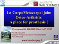 First CarpoMetacarpal joint Osteo Arthritis: A place for prosthesis?