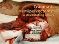 Traumatic hemipelvectomy - current status