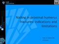 Nailing: Indications and limitations