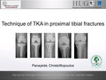 Technique of TKA in proximal tibial fractures
