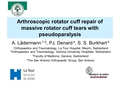 Recovery from pseudoparalysis after arthroscopic repair of massive rotator cuff tears