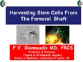 Harvesting stem cells from the femoral shaft