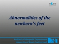 Abnormalities of new borns feet