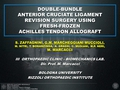 Double-bundle anterior cruciate ligament revision surgery using fresh-frozen Achilles tendon allograft