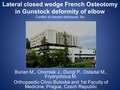 Lateral closed wedge French osteotomy in Gunstock deformity of elbow