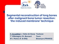 Segmental reconstruction of long bones after malignant bone tumor resection using 'the induced membrane' technique