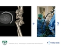 The use of dry arthroscopy in complex distal radius fractures: A prospective study of feasibility