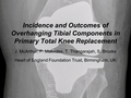 Incidence and outcomes of overhanging tibial components in primary total knee replacement