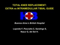 The use of intramedular vs extramedular guide in total knee replacement