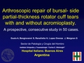 Arthroscopic repair of bursal- side partial-thickness rotator cuff tears with and without acromioplasty.  A prospective, consecutive study in 50 cases