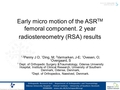 Early micro motion of the ASRTM femoral component. Two year Radiostereometric analysis  (RSA)