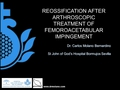 Reossification after arthroscopic treatment of Femoro acetabular Impingement