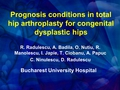 Prognosis conditions in total hip arthroplasty for congenital dysplastic hips