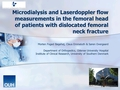 Microdialysis and Laser Doppler flow measurements in the femoral head in patients with dislocated femoral neck fractures, one year follow up