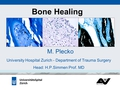 Different kind of plate osteosynthesis (different principles, methods, techniques, influence on bone healing) and influence on bone healing