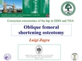 Oblique Femoral Shortening Osteotomy