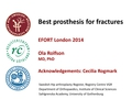 Best Prostheses For Fractures