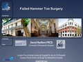 Failed Hammer Toes Surgery