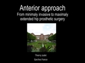 Anterior For All Corners