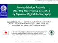 In Vivo Motion Analysis After Hip Resurfacing Evaluated By Dynamic Digital Radiography