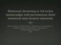 Metatarsal Shortening In Third Rocker Metatarsalgia With Percutaneous Distal Metatarsal Mini-Invasive Osteotomy (DMMO)