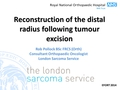 Options In Reconstruction Of The Distal Radius