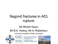 The Incidence Of Segond Fracture In Patients With ACL Rupture