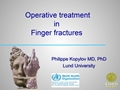 Operative Treatment In Finger Fractures. Overview And Case Discussion