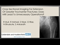 Cross Sectional Imaging For Extension Of Greater Trochanter Fractures: Does MRI Lead To Unnecessary Operations?