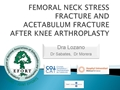 Femoral Neck Stress Fracture And Acetabulum Fracture After Knee Arthroplasty: Case Report And Review Of The Literature