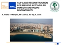 Cup Cage Reconstruction For Massive Acetabular Defects And Pelvic Discontinuity