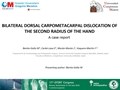 Bilateral Dorsal Carpometacarpal Dislocation Of The Second Radius Of The Hand. A Case Report