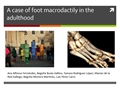 A Case Of Foot Macrodactily In The Adulthood