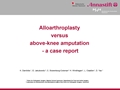 Alloarthroplasty Versus Above-Knee Amputation - A Case Report