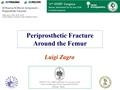 Periprosthetic Fractures Around The Femur