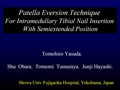 Patella Eversion Technique For Intramedullary Tibial Nail Insertion With Semiextended Position