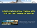 Insufficiency Bilateral Femoral Neck Fractures After Bariatric Surgery