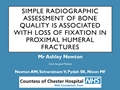 Simple Radiographic Assessment Of Bone Quality Is Associated With Loss Of Surgical Fixation In Patients With Proximal Humeral Fractures