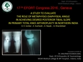 A Study To Evaluate The Role Of Metaphysio-Diaphyseal Angle In Achieving Desired Posterior Tibial Slope In Primary Total Knee Arthroplasty In Northern India