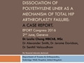 Dissociation Of Polyethylene Liner As A Mechanism Of Total Hip Arthroplasty Failure: A Case Report