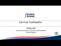 Cervical Myelopathy Based Case Discussion