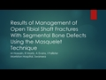 Results Of The Management Of Open Tibial Shaft Fracture With Segmental Defect Using The Masquelet Technique
