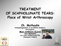 Past-Presence-Future: Arthroscopic Treatment Of SL Injuries
