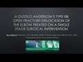 A Gustilo-Anderson's Type IIIB Open Fracture-Dislocation Of The Elbow Treated With Single Stage Surgical Intervention: A Case Report