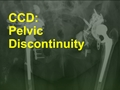 Pelvic Discontinuity in Revision Total Hip Arthroplasty